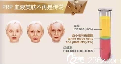 上海华美自体血清注射美容靠谱吗?