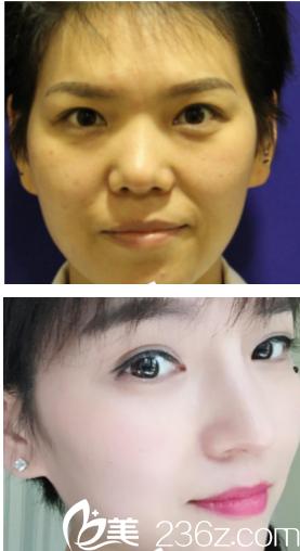 西安叶子截骨手术+肋软骨隆鼻+鼻小柱手术案例