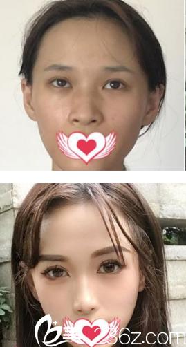 西安叶子膨体隆鼻+鼻翼收缩+自体耳软骨隆鼻尖真人案例