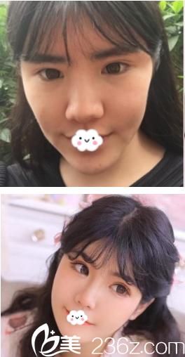 西安叶子隆鼻术后修复+肋软骨隆鼻尖前后对比案例