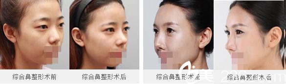 成都仪美整形医院鼻综合案例