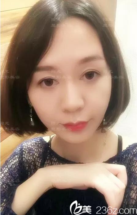 深圳阳光6d面部线雕治疗后生活照
