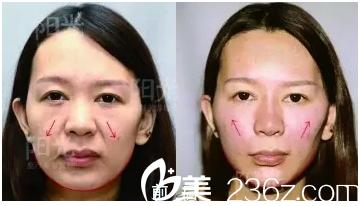 深圳阳光6d面部线雕治疗前后对比图