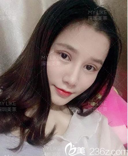 抖音小姐姐公开之前在深圳美莱找陈磊医生做双眼皮隆鼻的亲身经历