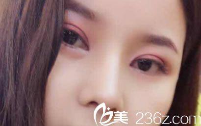 到杭州网红整形医院艺之花找段江华做了全切双眼皮和肋软骨网红鼻综合隆鼻手术