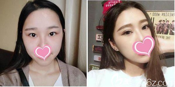赣州韩美整形医院双眼皮手术案例