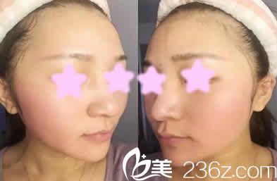 我在太原夏芙医美做蜂巢皮秒激光祛斑价格实惠,而且10天后面部变的光滑白皙