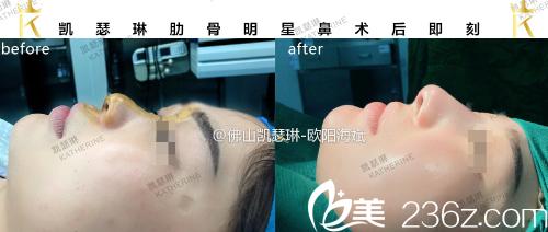 佛山凯瑟琳国际医美整形医院肋软骨隆鼻案例