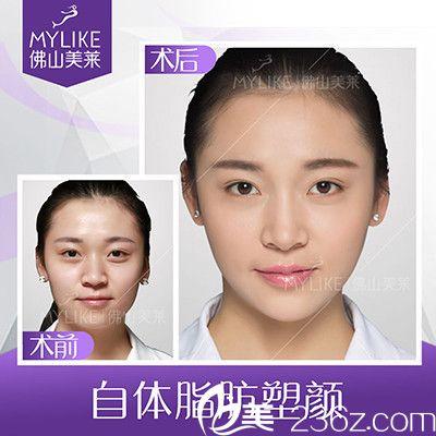 佛山美莱汪妍做的自体脂肪面部填充案例