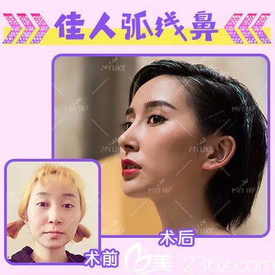 云南昆明华美美莱洪晓娅做的线雕隆鼻案例