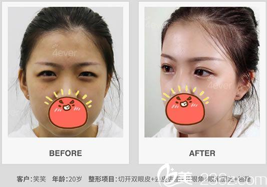 杭州4ever双眼皮和开眼角案例
