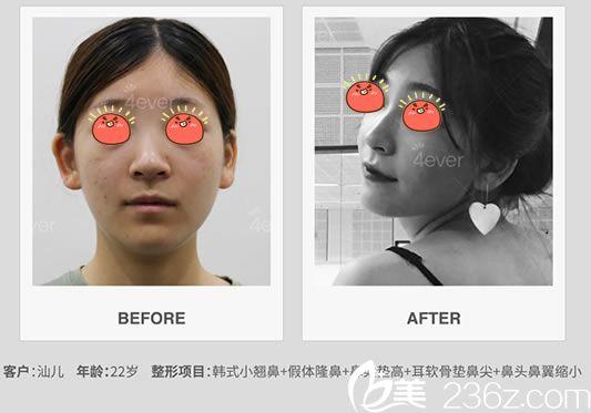 杭州4ever鼻综合隆鼻案例
