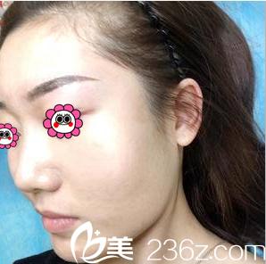 北京玲珑梵宫怎么样?高春红注射肉毒素瘦脸案例价格来参考