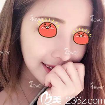 听说杭州4ever是韩国入驻的,喜欢韩式风格的我找金镇永院长做了鼻综合隆鼻手术