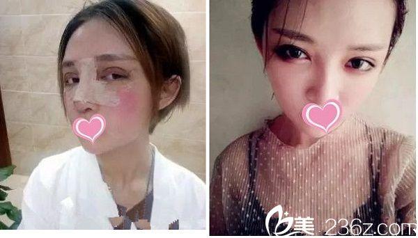 宜春韩美医疗美容医院双眼皮手术案例