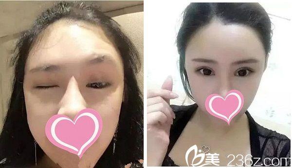 宜春华美整形医院双眼皮手术案例