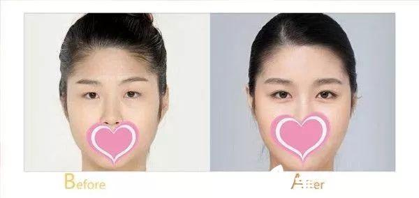 宜春伊美双眼皮手术案例