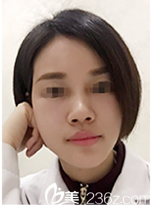 脸大干瘪的我找南京美贝尔黄名斗院长做了自体脂肪填充后反而变小脸了