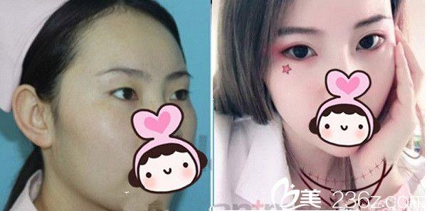 贺晓燕院长双眼皮手术案例分享