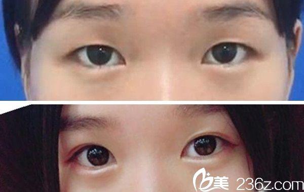 刘广志双眼皮手术案例分享: