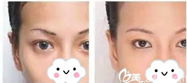 宫昔愿主任双眼皮手术案例分享