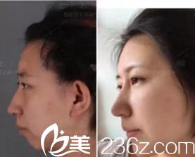 没想到在昆明悦格医疗美容诊所做了自体脂肪填充下巴,因为没下巴被嘲笑了20多年