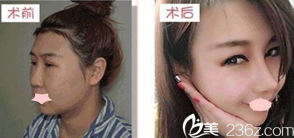属于云南彼心整形的肋软骨鼻综合案例
