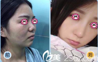 北京蕾士悦肋软骨隆鼻案例