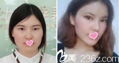 北京蕾士悦双眼皮案例