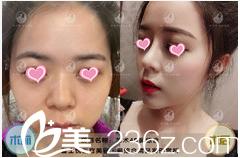 北京蕾士悦4D鼻综合案例