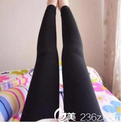 北京蕾士悦抽吸脂怎么样?李海兵腿部吸脂案例和价格来参考
