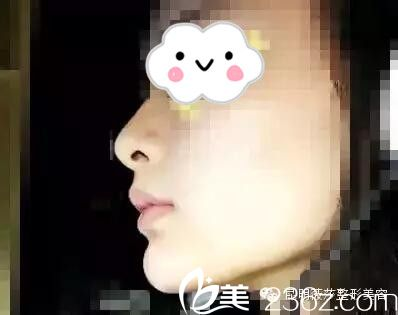 昆明薇莎国际整形美容医院杨维琦注射玻尿酸垫下巴1个月改变脸型的效果图