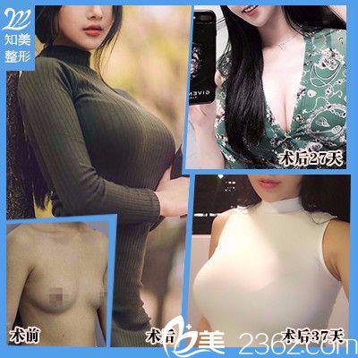 东莞南城知美黄双闻做的自体脂肪丰胸案例
