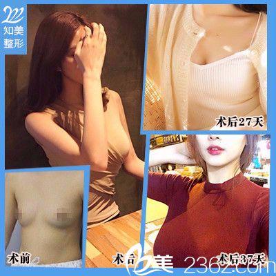 东莞南城知美黄双闻做的假体隆胸案例