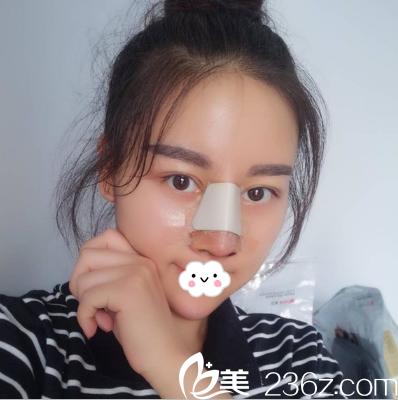 鼻部修复手术后恢复中