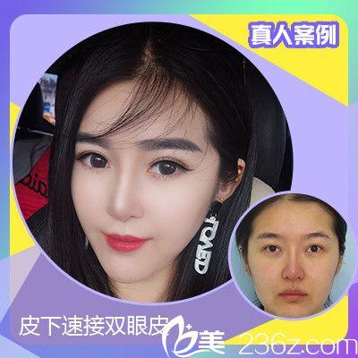 深圳嘉美医疗美容肖添有双眼皮案例