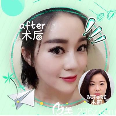 深圳嘉美医疗美容程明做的隆鼻案例