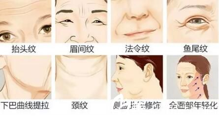 面部胶原蛋白流失出现各种皮肤衰老现象
