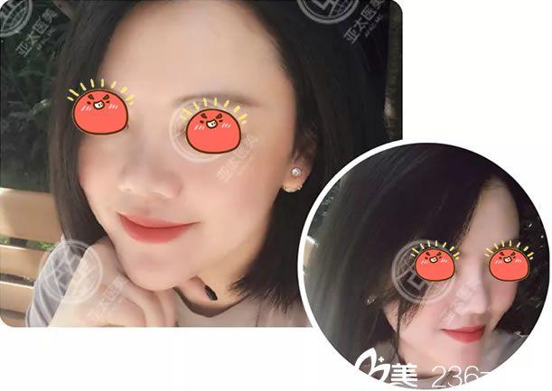 28岁被员工叫老阿姨,来昆明美立方找刘凤斌做自体脂肪面部填充+玻尿酸丰下巴挽救职场威望
