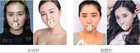 四川西婵水光针+瘦脸针案例对比