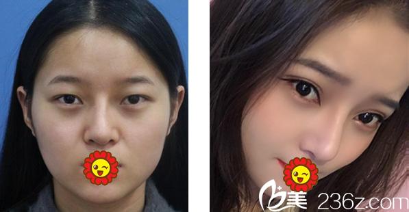 圣丽童话全切双眼皮+鼻综合隆鼻效果案例