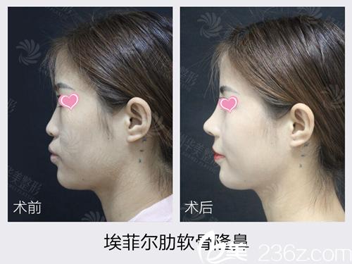 去了赣州华美后我做坏的鼻子终于有救了,看晏传涛医生给我做的鼻综合/鼻修复