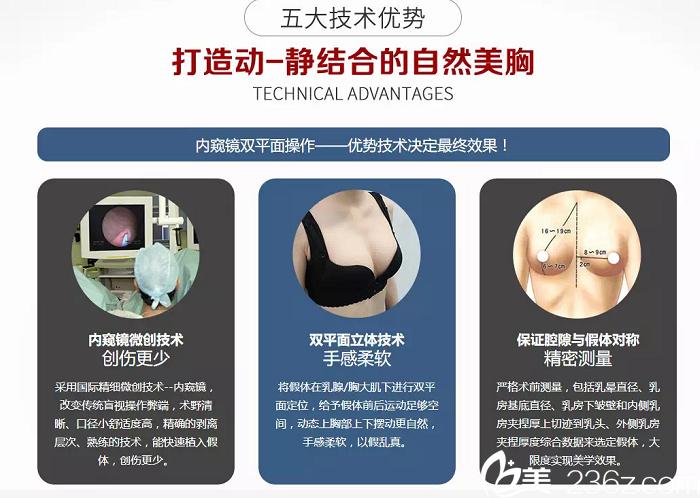 联合里格杨大平隆胸技术特色展示