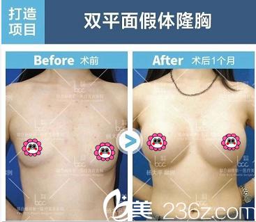 北京联合丽格杨大平双平面假体隆胸案例