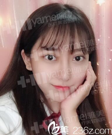 长沙哪个医院打瘦脸针好?分享我找长沙雅美袁妍妍打瘦脸针的全过程经历!