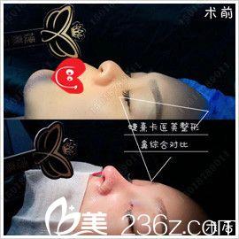 通过两组鼻综合手术案例对比图来看昆明婕熹卡隆鼻实力如何