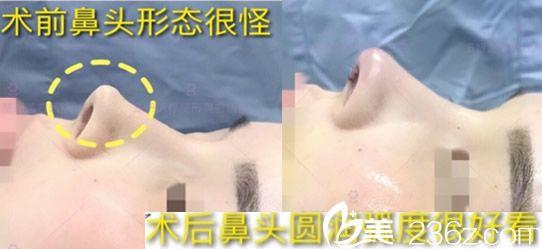 妞们来看下蚌埠多妍整形医院隆鼻案例对比图 帮忙评价下多妍隆鼻效果怎么样