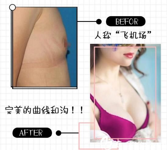 南京施尔美隆胸案例