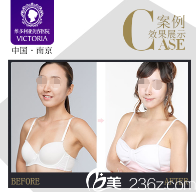 南京维多利亚隆胸案例