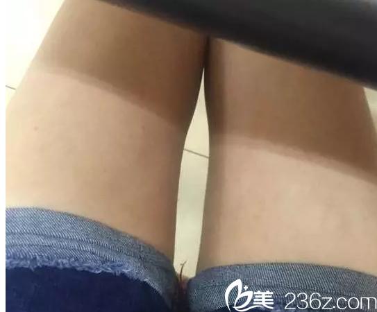 我在昆明韩辰做腿部吸脂只因闺蜜找陈宁做面部吸脂效果不错价格公道